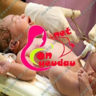 Chăm sóc rốn cho trẻ sơ sinh và những điều cần biết