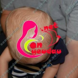 Những điều mẹ nên biết về thóp đầu của trẻ sơ sinh
